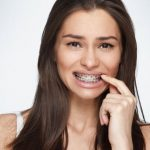 switch-to-invisalign