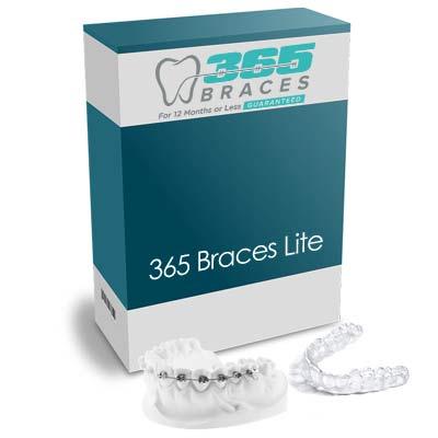 365 Hybrid Braces – LITE - Braces + Clear aligners