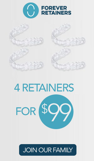 4 retainers for $99.00
