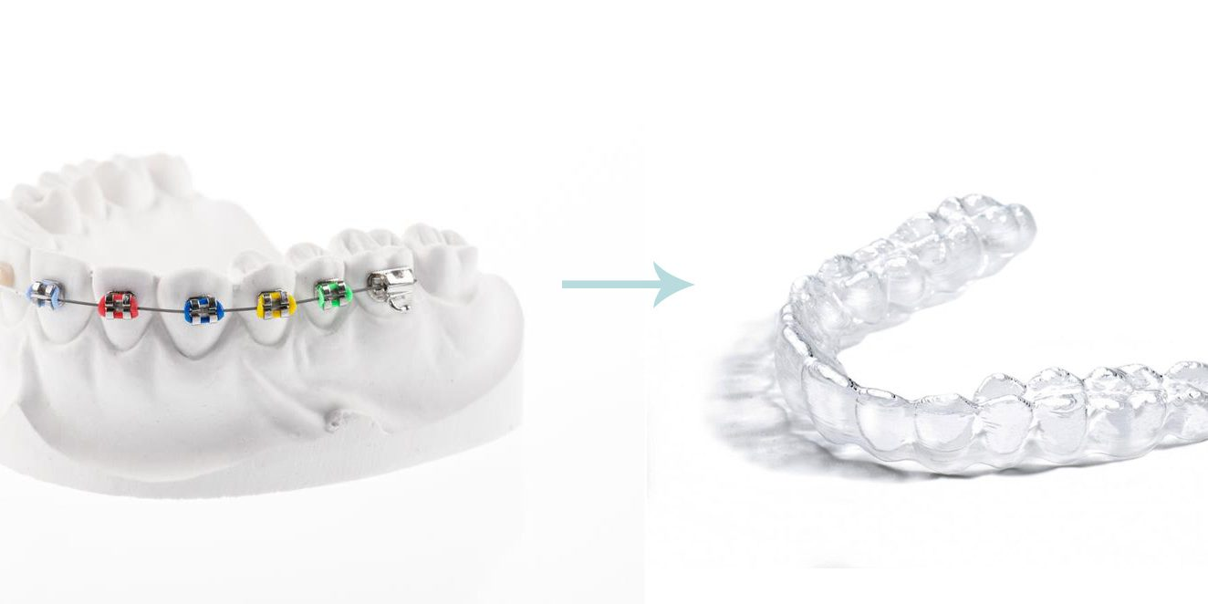 How long wear retainers after braces? - Carter Orthodontics