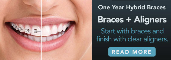 Start with braces and finish with clear aligners.